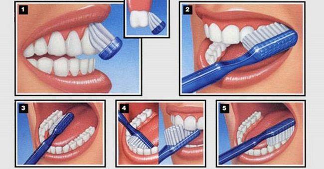 чистка зубів фото