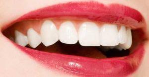 Відбілювання зубів содою, перекисом водню і лимоном: рецепти та відгуки