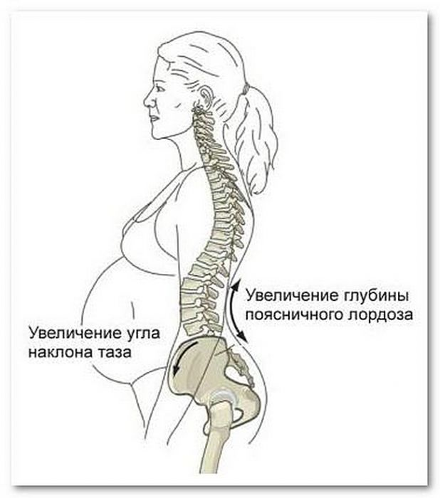 Схема як змінюється постава жінки під час вагітності